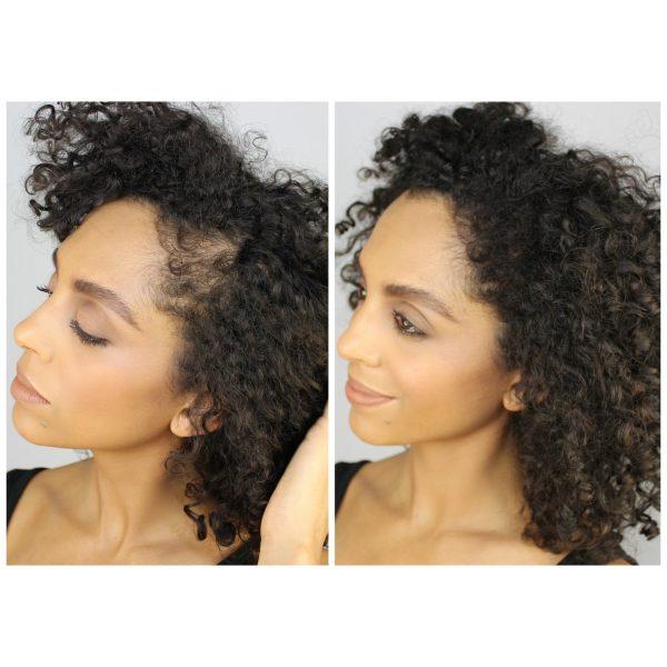 Anti Hair Loss Fibers