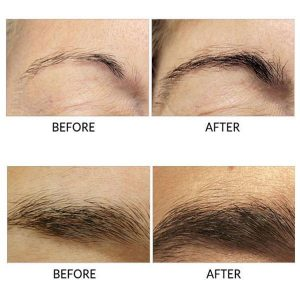 Eyebrows Growth Serum