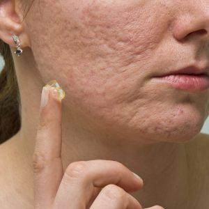 TCM Acne Scar Cream